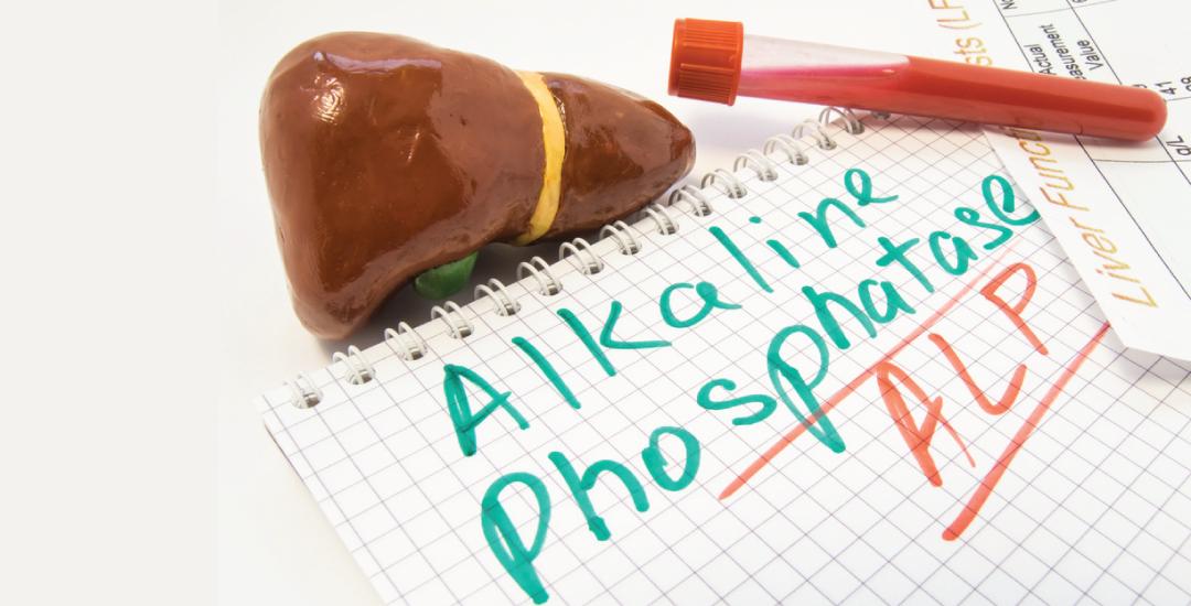 Mengetahui Nilai Alkali Fosfatase