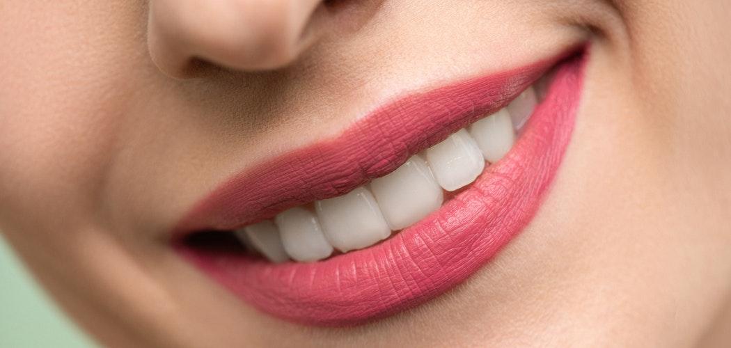 Kiat Memutihkan Gigi Kuning Karena Antibiotik